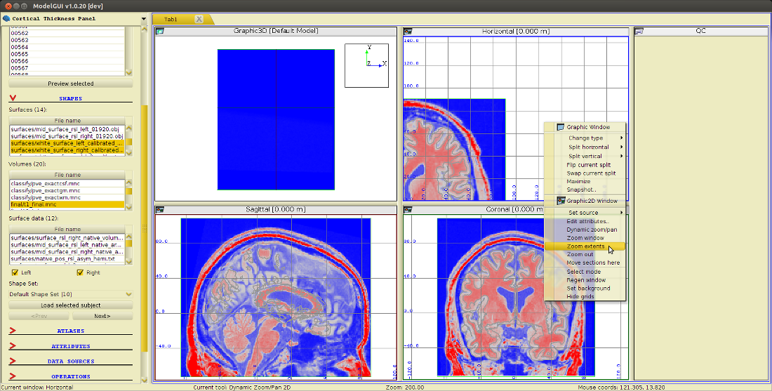 cortical_thickness_load_subject.png