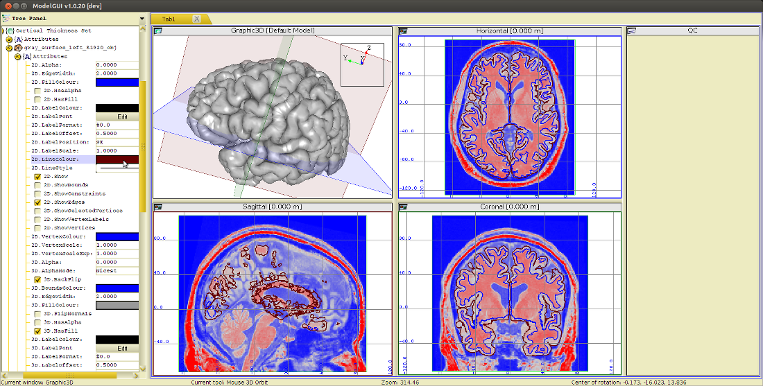 cortical_thickness_set_attributes.png